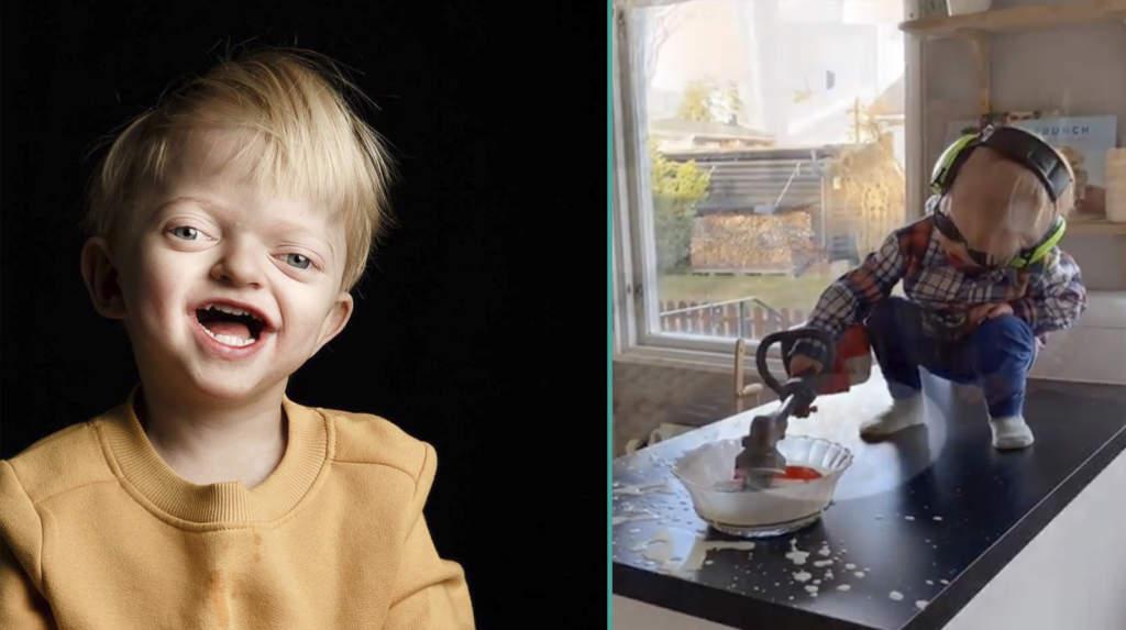 """<a href=""""https://www.aftonbladet.se/a/Wbgvy2"""">Elliot, 3, föddes med ovanligt syndrom – nu glädjer han tusentals med sin bakning</a>"""