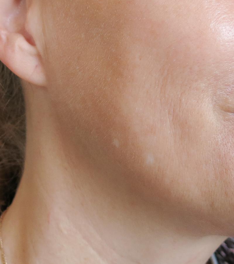Jag har några pigmentfläckar på kinden som jag vill bli av med. De blev mindre framträdande redan efter en gång. Huden blev inte röd direkt efter behandlingen