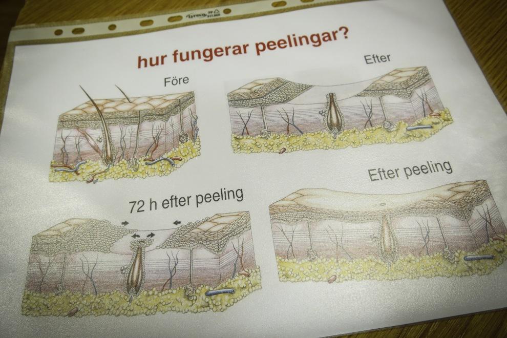 Innan man gör peelingen gör man et lapptest för att se så att man tål behandlingen i huden.