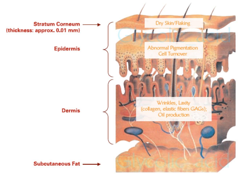 Hudens olika lager har olika funktioner men med samma syfte. Att skydda oss. Lär dig mer om huden och du kommer att förstå vad krämerna du använder egentligen kan göra. Bild från healthyskinsolutions.