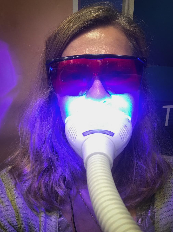Jag passade på att bleka tänderna utan peroxider hos Tooth Fairy som istället bleker med sodium perborat så ilar det inte i tänderna.