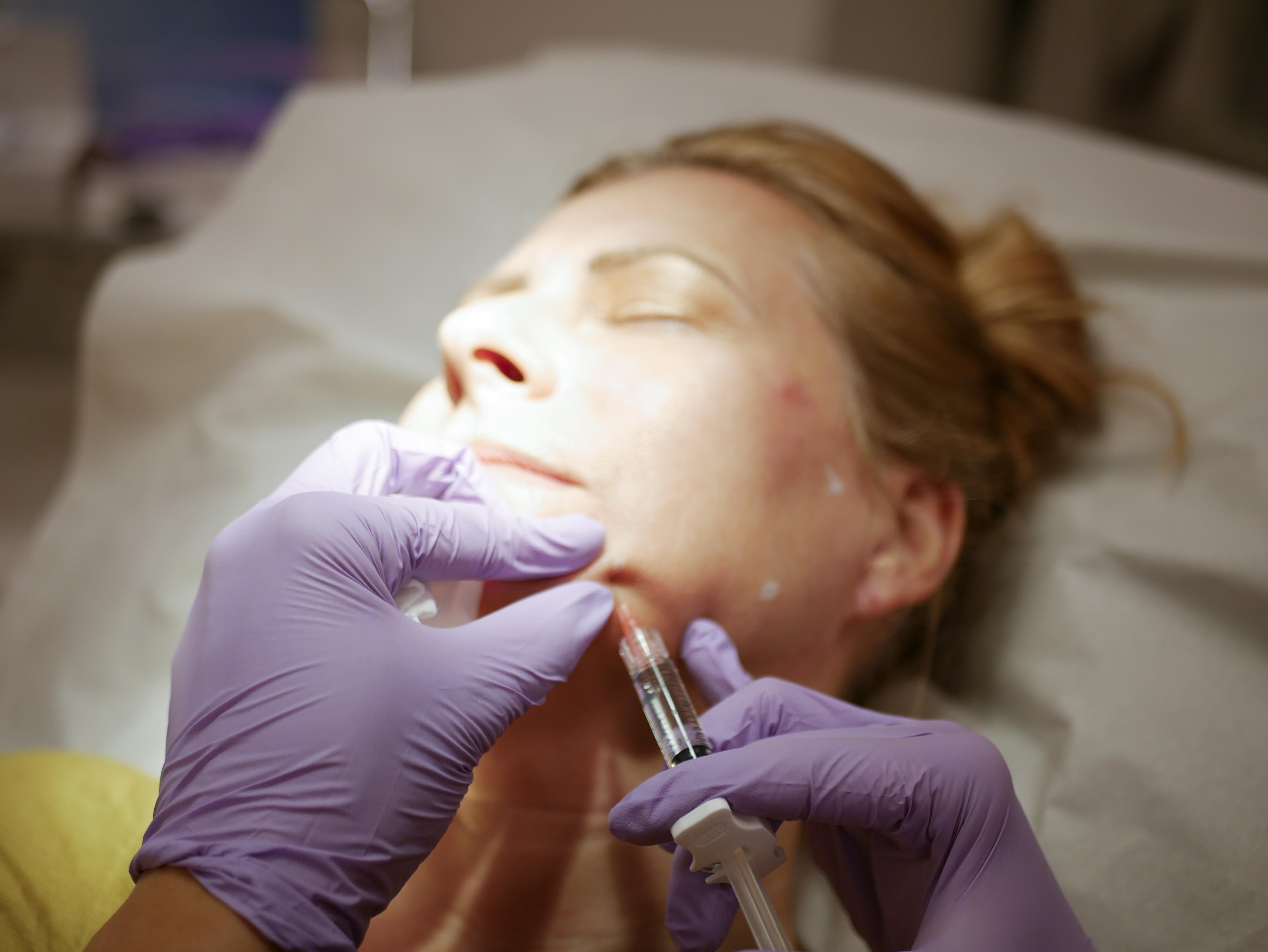 Prophilo är en ny injektionsbehandling baserad på lättflytande hyaluronsyra där man behandlar på fem specifikt uträknade punkter.