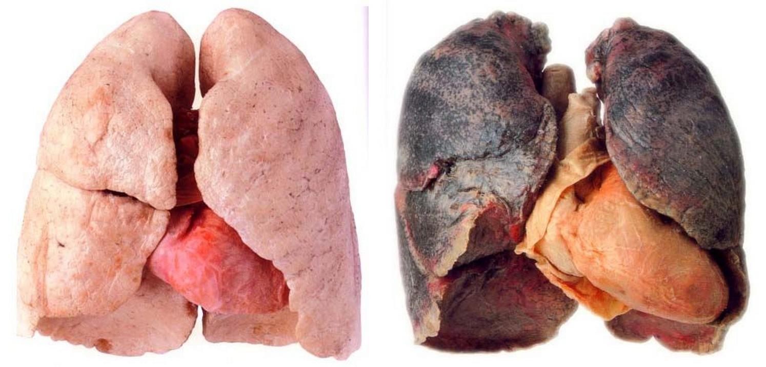 Hur man röker en fentanylplåster icke gel