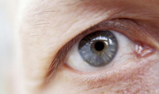 vad är melerade ögon