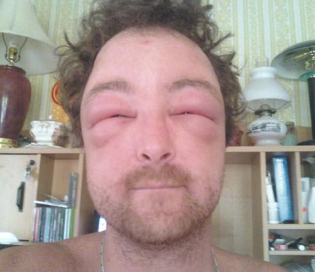 Jobbig var for allergiker