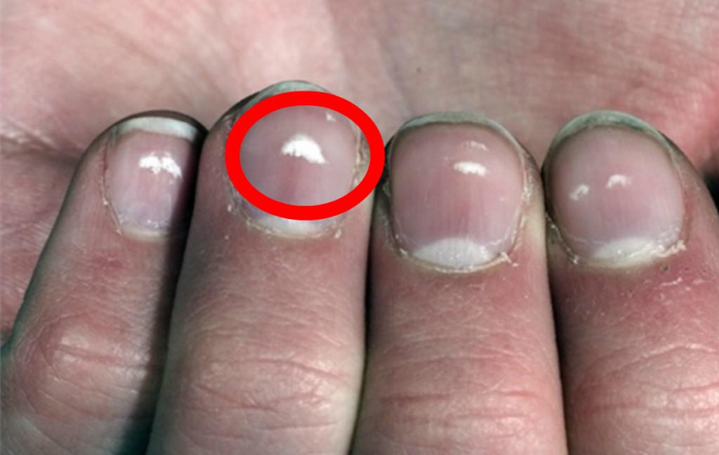 kalciumbrist naglar