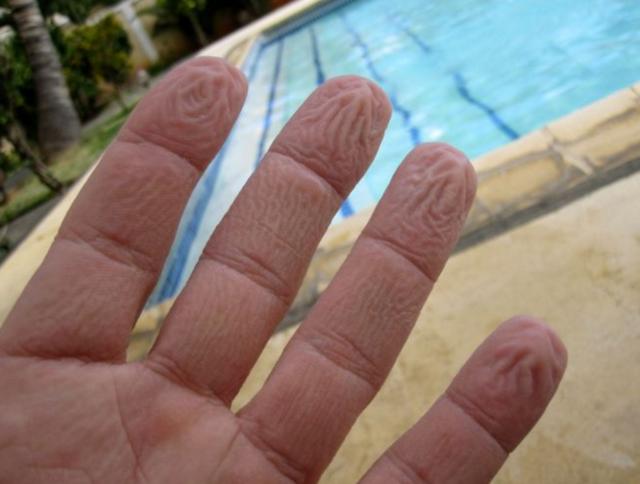 varför blir huden skrynklig när man badar
