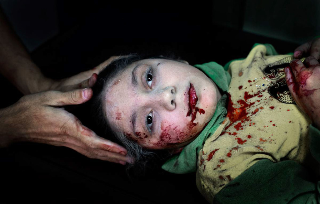 Aleppo, 2012. Dania Kilsi, 11, behandlas för splitterskador. Hon och hennes yngre syskon, Zaid och Fatima, lekte utanför hemmet när en granat slog ner. Foto: NICLAS HAMMARSTRÖM (oktober 2012)