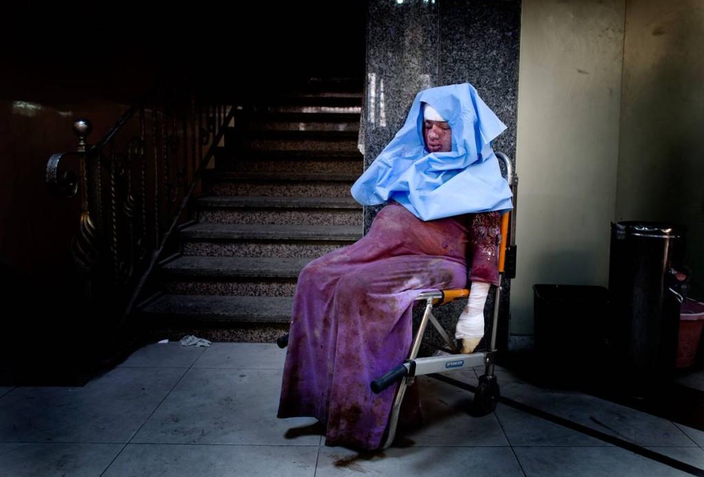 Den gravida kvinnan har skadats i en granatattack. Nu sitter hon avsvimmad på sjukhuset och väntar på vård. Foto: NICLAS HAMMARSTRÖM (oktober 2012)