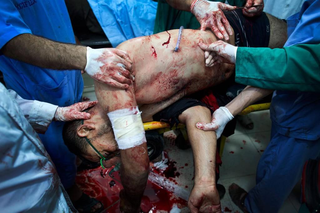En rebellsoldat anländer till sjukhuset med en skottskada i bröstet. Nio minuter senare är han död. Foto: NICLAS HAMMARSTRÖM