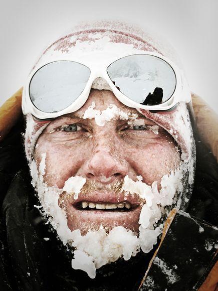 Cory Richards direkt efter lavinen.