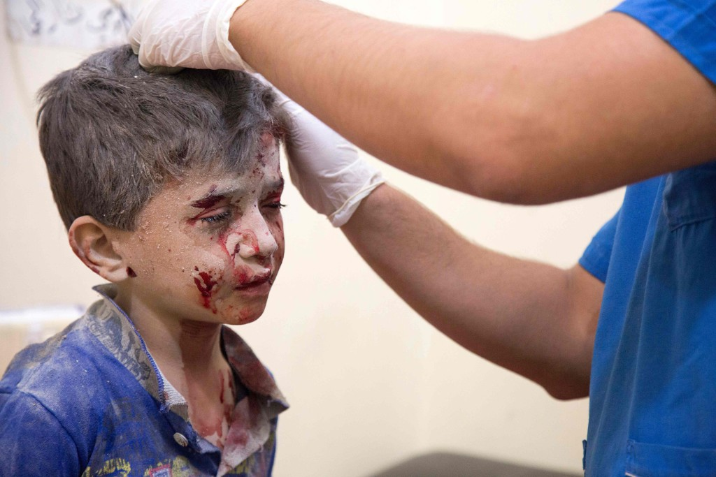 foto : karam al-masri : a syrian boy receives treatment at a make-shift hospital following air strikes on rebel-held eastern areas of aleppo on september 24, 2016.  heavy syrian and russian air strikes on rebel-held eastern areas of aleppo city killed at least 25 civilians on saturday, the britain-based syrian observatory for human rights said, overwhelming doctors and rescue workers.     / afp photo / karam al-masri / tt / kod 444