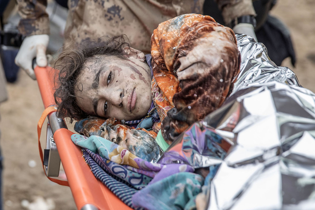 foto : magnus wennman : tolvåriga wijdan moofik har skadats svårt. såren är överallt. sjukvårdare pressar med händerna över de värsta skadorna för att hejda blödningen.  fältsjukhuset vid irakiska frontlinjen i mosul. hit kommer skadade och dödade civila och militärer från striderna i mosul. de som inte avlider får akut sjukvård och körs vidare till sjukhuset i erbil.