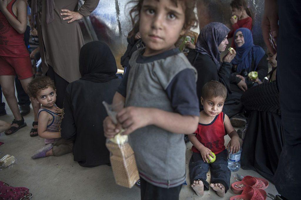 Barnen i det improviserade fältsjukhuset i östra Mosul har precis fått lämna områden i gamla stan där striderna mellan irakiska armén och IS är hårda. Flera av dem uppvisar symptom på undernäring. Foto: Jerker Ivarsson
