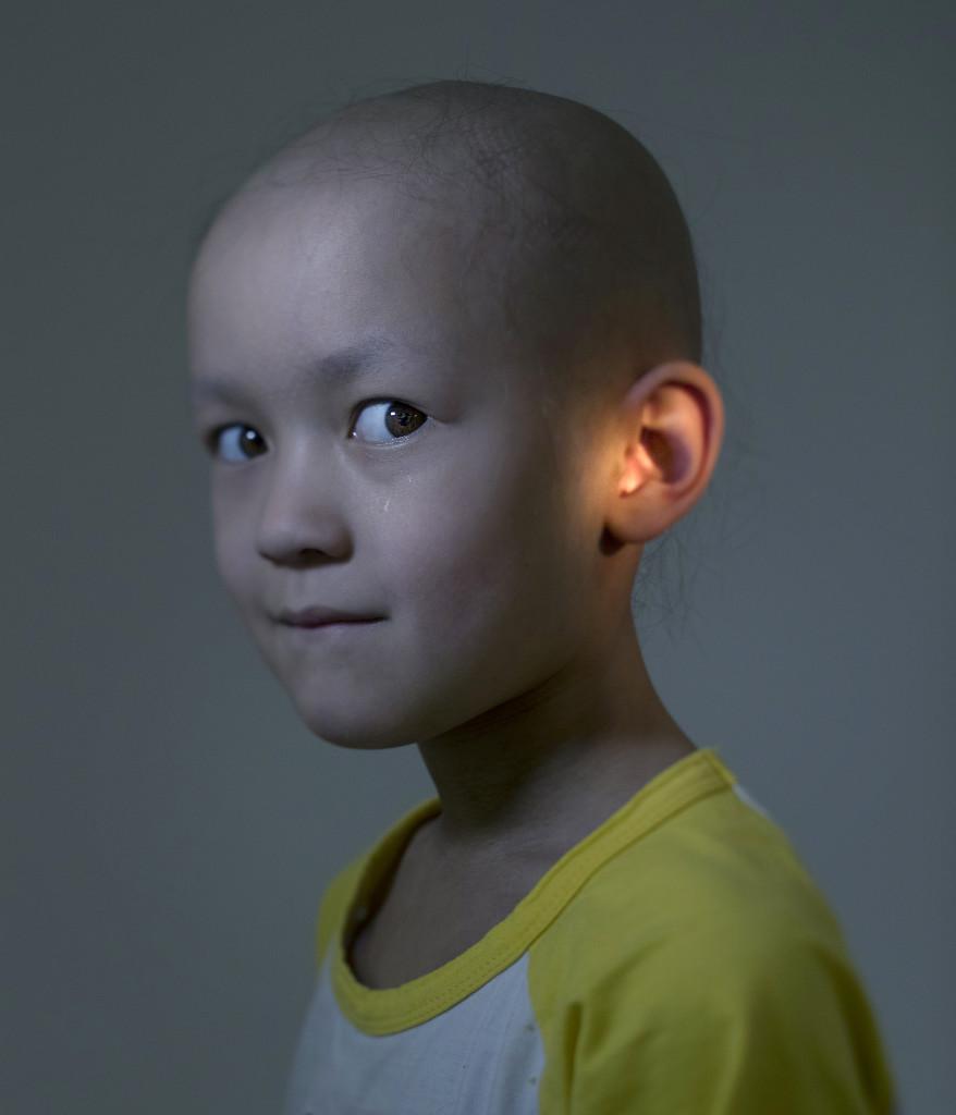 Bildreportage om barncancer.  Maja Ekström, 5. Strålas för tumör i örat