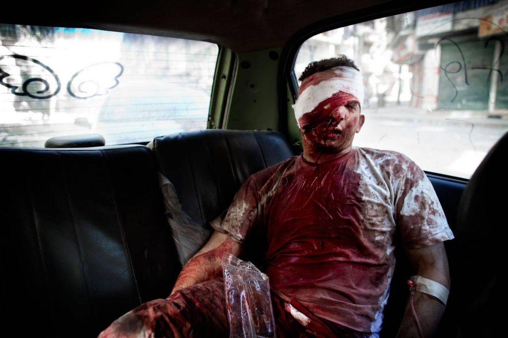 Många patienter som kommer till Dar al-Shifa måste på grund av brist på medicinsk utrustning skickas vidare till sjukhus som kontrolleras av regimen. Sjukhuspersonalen hjälper mannen in i en taxi och hoppas att han kommer igenom alla säkerhetskontroller. Foto: NICLAS HAMMARSTRÖM