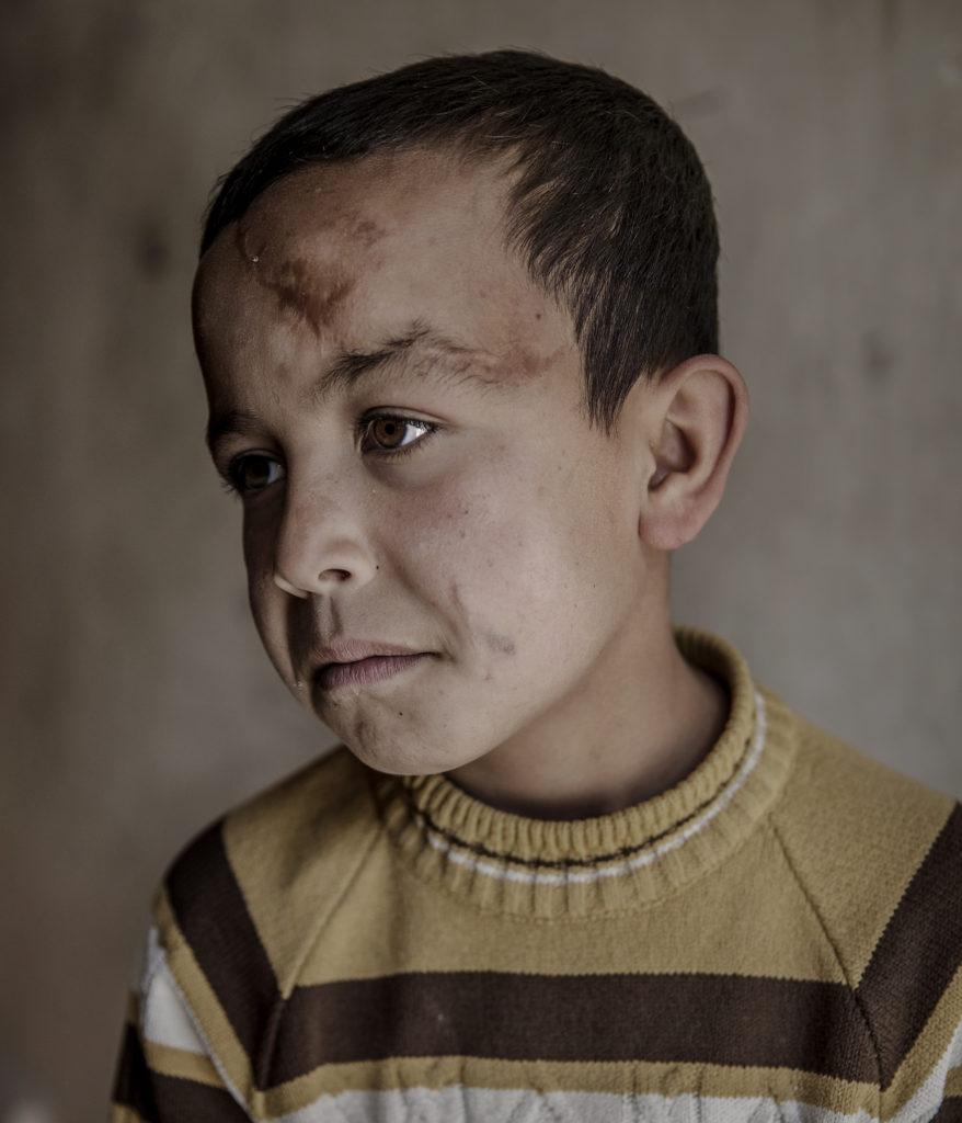 foto : magnus wennman : aftonbladet i syrien.  omrŒdet hanano i utkanten av aleppo. ahmad 10 Œr. deras hem i omrŒdet al-humaymiyah al-kabira i aleppo kollapsade fšr knappt ett Œr sedan. ahmed var dŠr inne, taket och vŠggarna rasade ner pŒ honom. till hanano kom de fšr en och en halv mŒnad sedan. varje gŒng jag hšrde ett stridsflyg sŒ skakade jag av rŠdsla, jag fšrsškte gšmma mig genom att lŠgga mig pŒ golvet. det kŠndes som om flygplanen var utspridda šverallt pŒ himlen, šver oss, och nŠr de skšt sŒ flšg raketerna šver oss, sŠger han. ahmad har fortfarande granatsplitter i ansiktet och i flera delar av kroppen. hans mamma sŠger de lŠt oss inte lŠmna vŒra hem, men hon sŠger inte vilka de Šr.