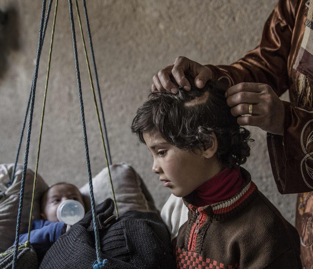 foto : magnus wennman : aftonbladet i syrien. pojken i vaggan: ali-ali med sin mamma  den lilla flickan som fått taket över sig i huvudet heter julia hon drabbades värst när familjen flydde från tariq-al-bab. raketer träffade familjens hus och taket föll ner på julia, hon har skador i huvudet som hon fått vård för, men är skadad i handen och foten, så hon har svårt att gå och röra sig fritt. hon fick ett nervsammanbrott, säger mamman, hon gråter på nätterna och kissar på sig av rädsla. dessutom blir barnen bitna av råttor, möss, insekter, spindlar. vi sover på det vi hittat här runt omkring. madrasserna är så tunna att det känns som om vi sover på betong.