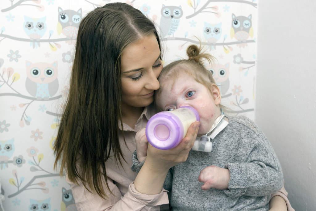 meja fšddes med aperts syndrom. hanna heimersson tillsammans med dotter meja som fšddes med aperts syndrom, ett medfštt kraniofacial missbildningssyndrom,